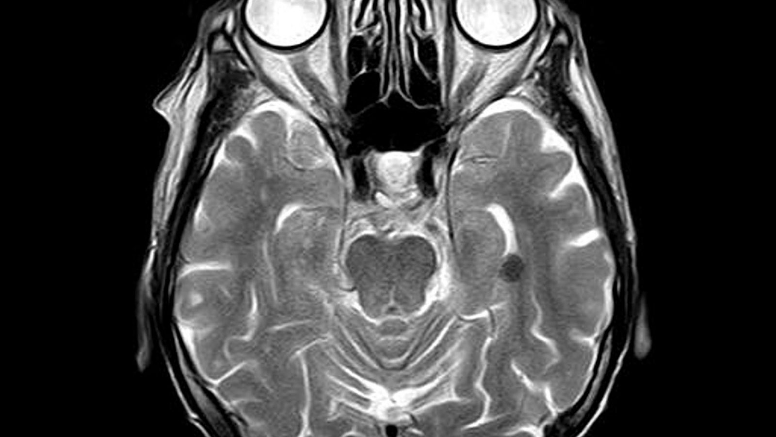 MRI画像は、精神科におけるバイオマーカーになりえるか?【AI×メンタルヘルス】(論文解説)